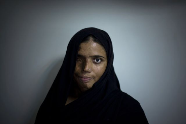 "OMG of the Day. ""Acid Terrorism� Against Women in Pakistan (12 pics + text)"