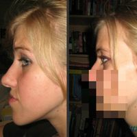 An Incredible Jaw Surgery That Gave This Girl a New Lease on Life  (14 pics)