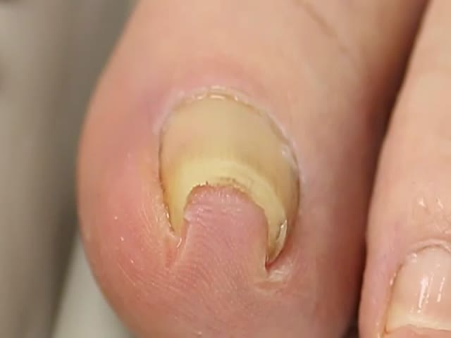 How They Deal with Funky Toenails in Japan  (VIDEO)