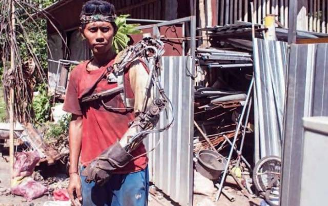 This Indonesian Guy Is a Real Life Bionic Man